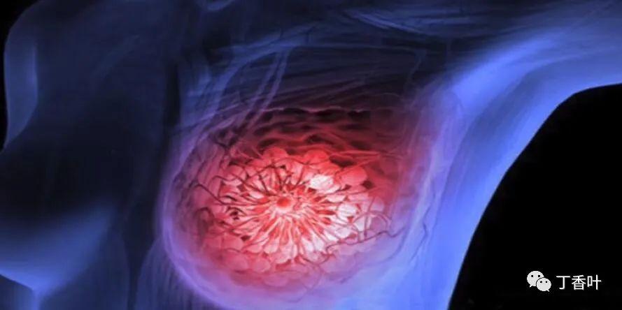 止汗剂、除臭剂和乳腺癌