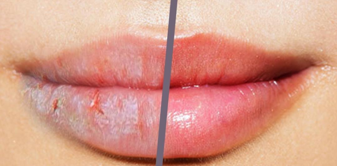 如果嘴唇用什么都干/甚至起皮,试试这个