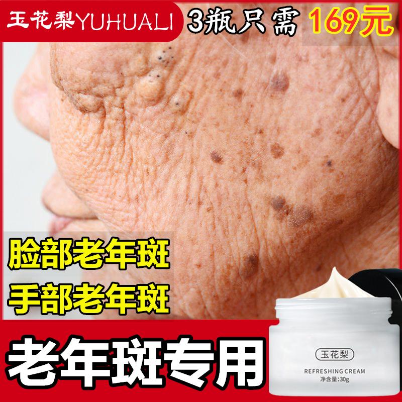 正品祛除老人去老年斑的药专用神器手背上脸部黑色素男女士祛斑霜