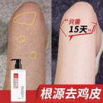 果酸身体乳美白保湿去鸡皮肤疙瘩毛囊角质角化女腿部全身去除神器